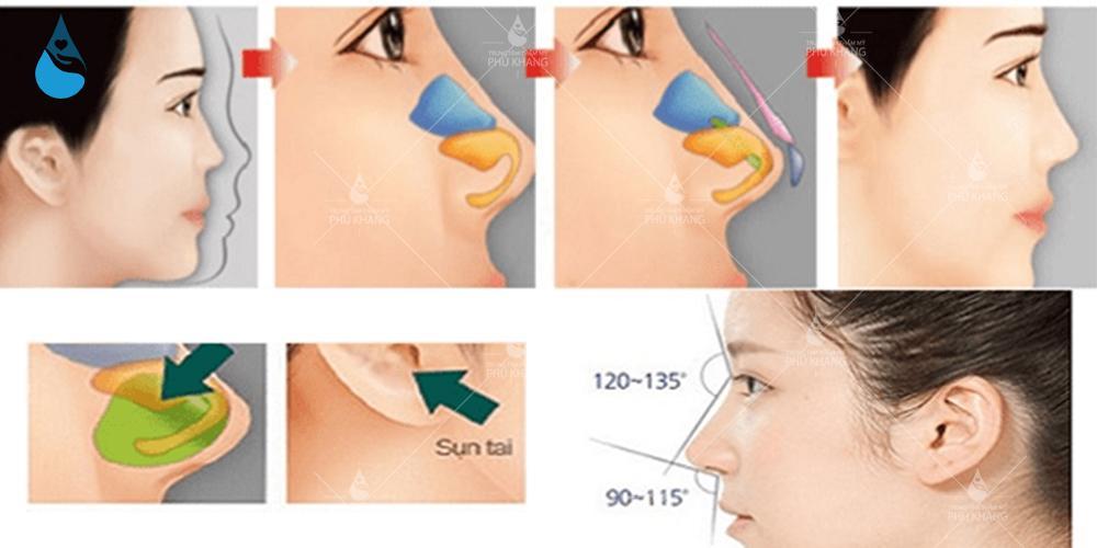 Trường hợp nên nâng mũi bọc sụn vành tai