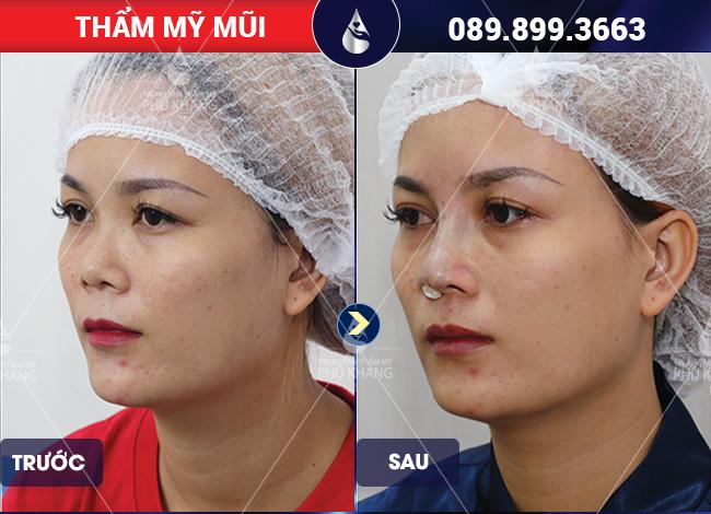 Hình ảnh khách hàng sau khi nâng mũi cấu trúc giá bao nhiêu