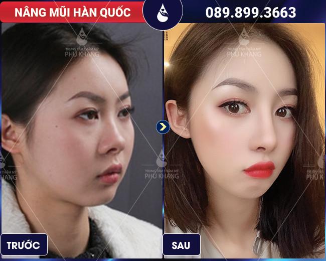 hình ảnh khách hàng nâng mũi Hàn Quốc