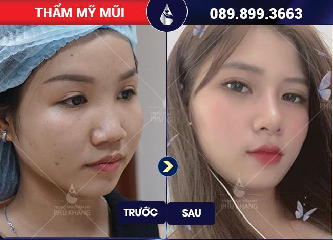 HÌnh ảnh khách hàng nâng mũi s line tại thẩm mỹ viện Phú Khang