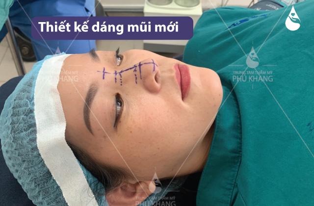 quy trình Thu nhỏ đầu mũi