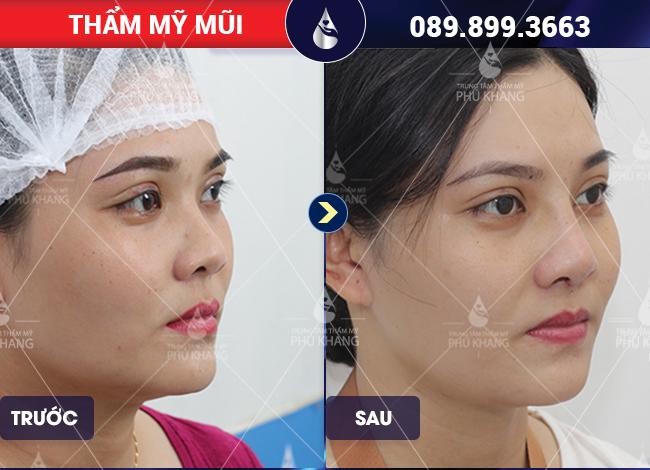 hình ảnh khách hàng nâng mũi sụn nhân tạo có vĩnh viễn không