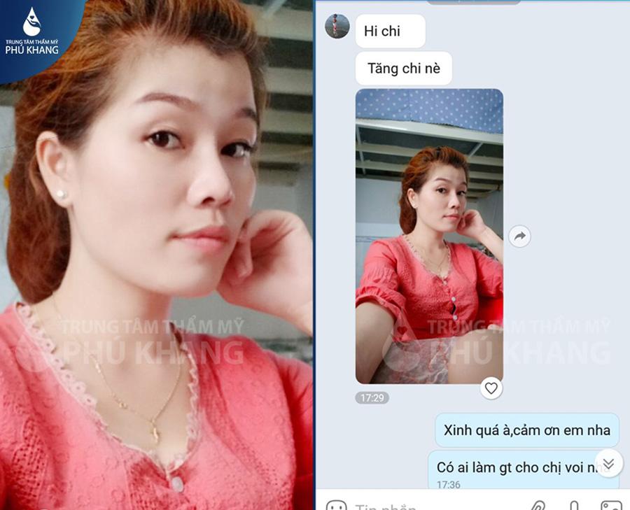 Phản hồi khách hàng Sửa mũi hếch tại Phú Khang