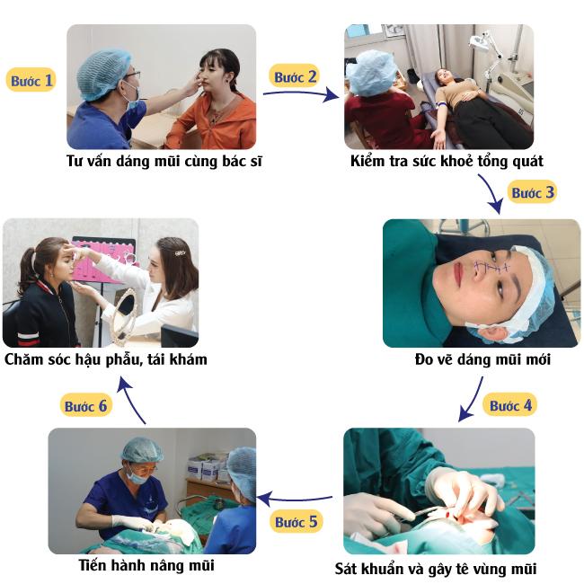 quy trình nâng mũi tại phú khang
