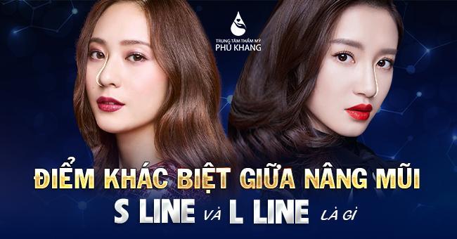 Điểm khác biệt giữa s line và l line