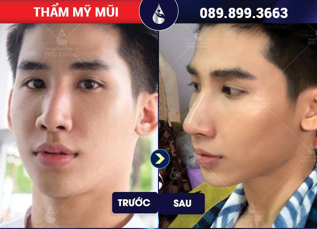 khách hàng sửa mũi hếch giá bao nhiêu tại Phú Khang
