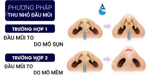 Thu gọn đầu mũi có đau không là gì