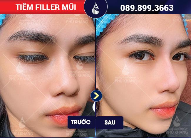 Khách hàng sử dụng dịch vụ tiêm filler mũi ở đâu đẹp