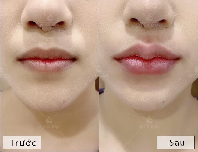 khách hàng tiêm filler môi