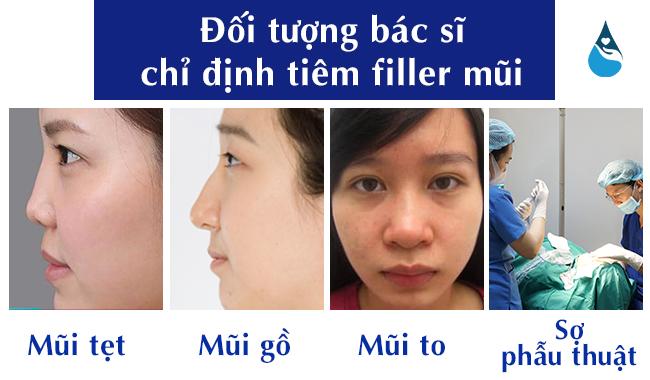 đối tượng tiêm filler nâng mũi
