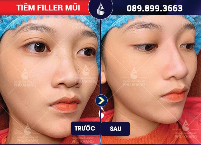 tiêm filler mũi đẹp tại TPHCM