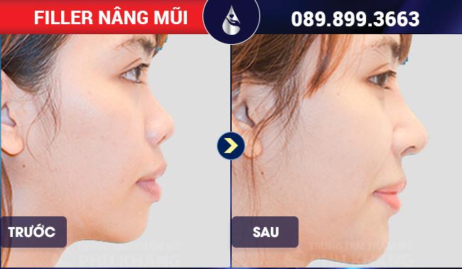 quy trình tiêm filler mũi