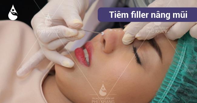 quá trình tiêm filler nâng mũi bị tràn