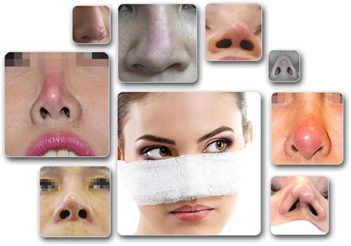 đối tượng tiêm filler mũi có hại không