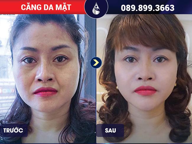 Khách hàng sau khi căng da mặt bằng chỉ tại Phú Khang