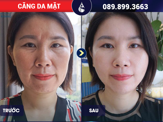 Đổi mới diện mạo sau khi căng da mặt bằng chỉ tại Phú Khang