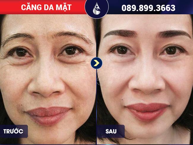 Da căng trẻ hóa sau khi căng da mặt bằng chỉ tại Phú Khang