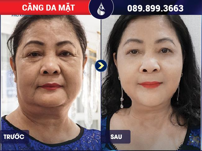 Trẻ trung hơn với phương pháp căng da mặt bằng chỉ tại Phú Khang